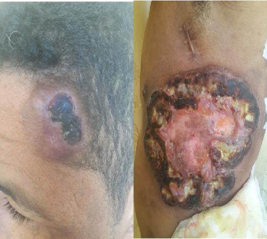 Cutaneous Lymphomas: Unusual Cases 2: v. 2