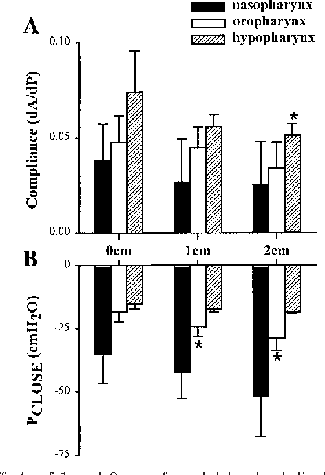 Fig. 3. Effects of 1 and 2 cm of caudal tracheal displacement on dA/dP (A) and Pclose (B) of the nasopharynx, oropharynx, and hypopharynx. Values are means SD for the group. *Significantly different from 0 cm, P 0.05.