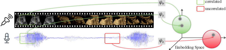 Figure 1 for Self-supervised Contrastive Video-Speech Representation Learning for Ultrasound