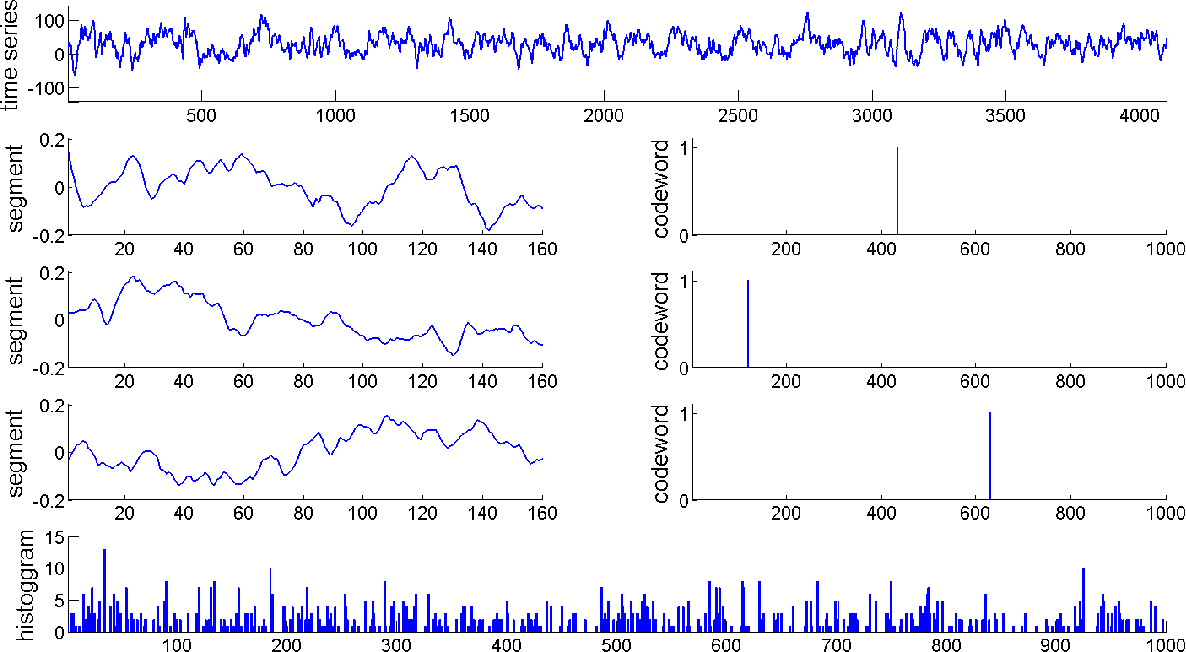 Figure 3 for Bag-of-Words Representation for Biomedical Time Series Classification