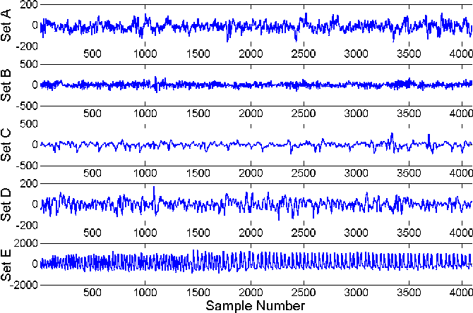 Figure 4 for Bag-of-Words Representation for Biomedical Time Series Classification
