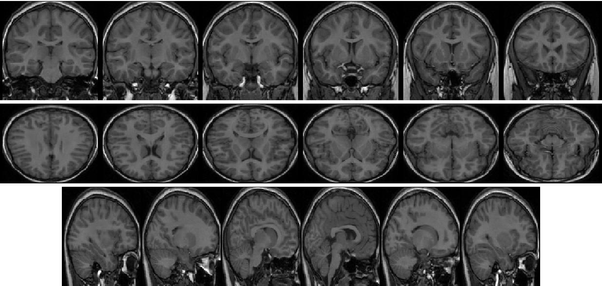 PDF] Segmentation of brain MRI structures with deep machine learning