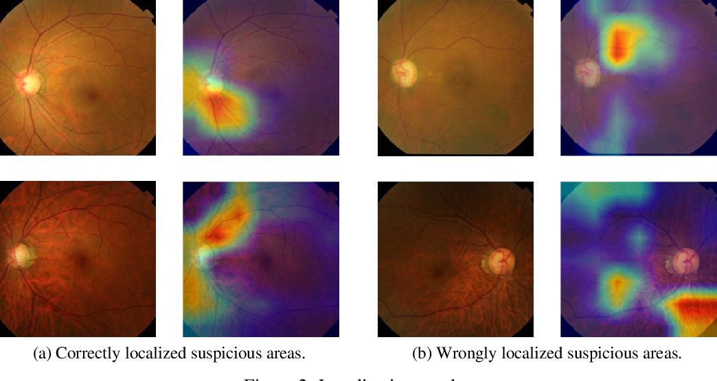 Figure 3 for Web Applicable Computer-aided Diagnosis of Glaucoma Using Deep Learning