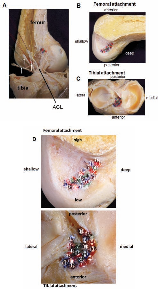Anatomy Of Normal Human Anterior Cruciate Ligament Attachments