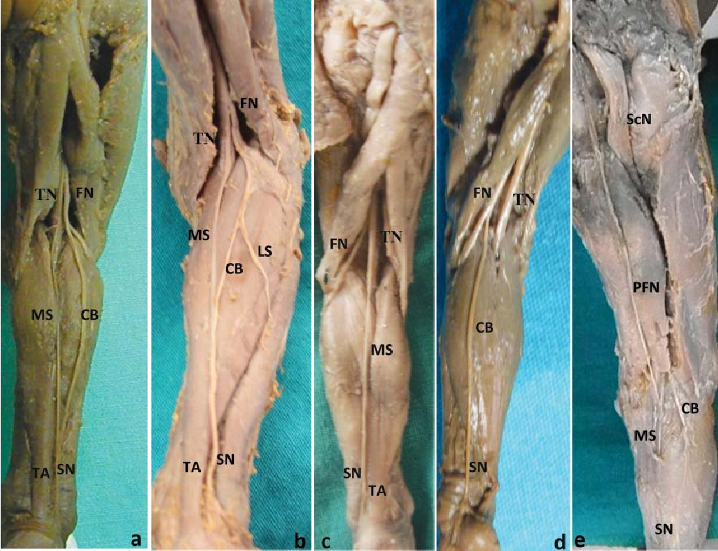 Formation Of The Sural Nerve In Foetal Cadavers Semantic Scholar