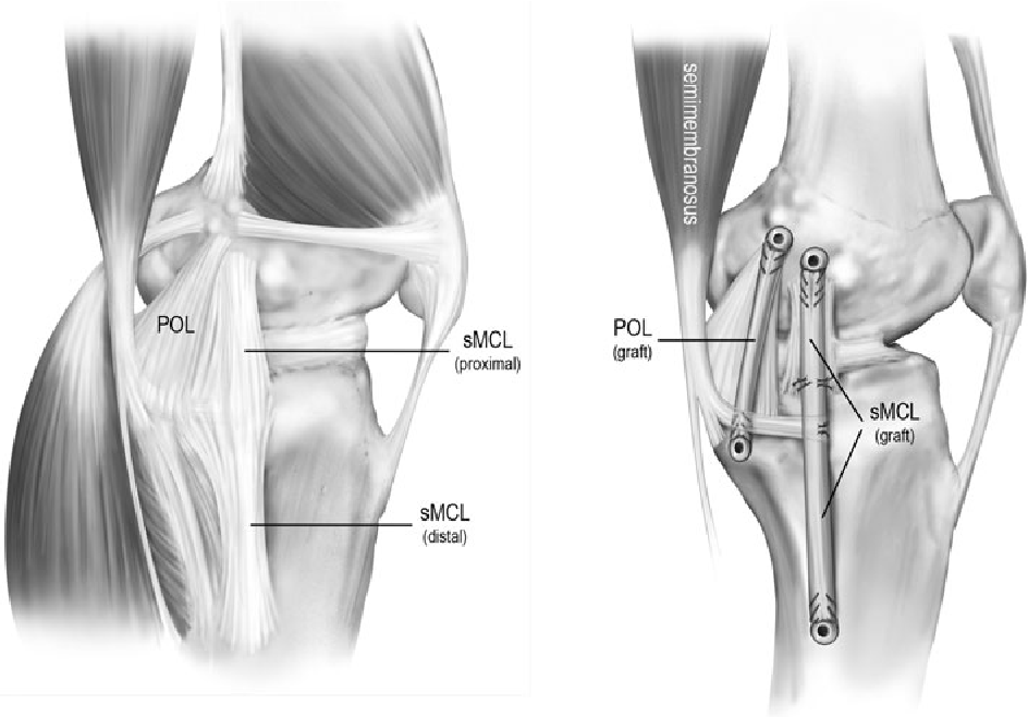 Surgical technique: development of an anatomic medial knee ...