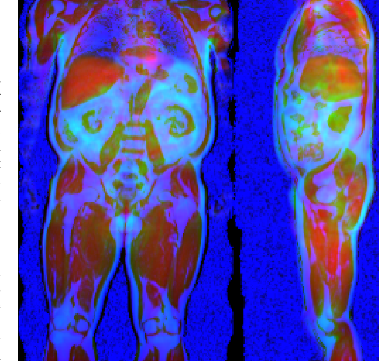 Figure 1 for Uncertainty-Aware Body Composition Analysis with Deep Regression Ensembles on UK Biobank MRI