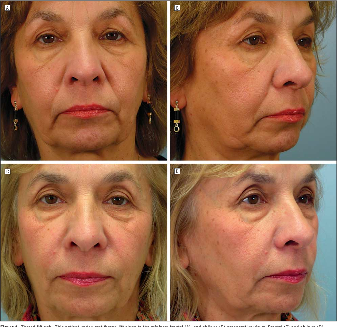 Thread-lift for facial rejuvenation: assessment of long-term results