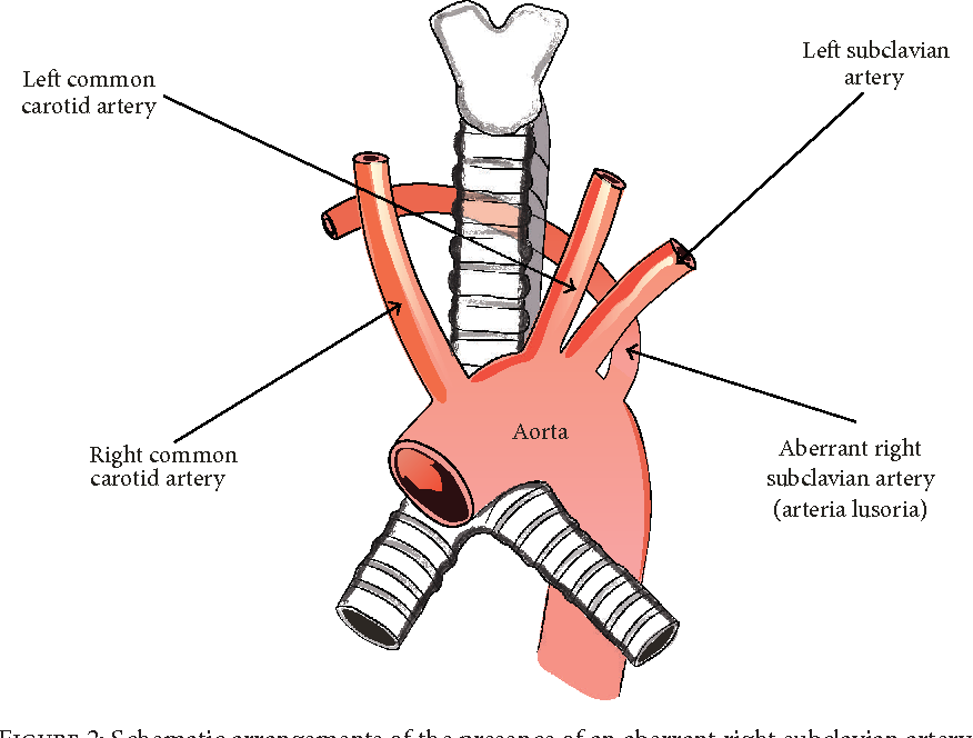 The Aberrant Right Subclavian Artery (Arteria Lusoria): The ...