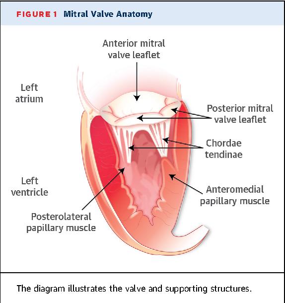 Secondary mitral regurgitation in heart failure: pathophysiology ...