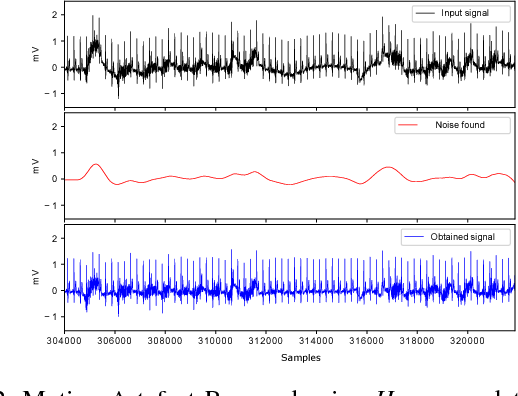 Noise Reduction and Delineation of ECG Signal - Semantic Scholar