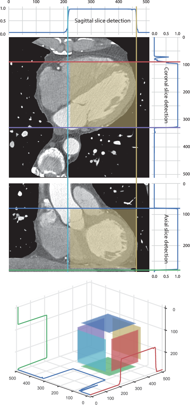 Figure 4 for ConvNet-Based Localization of Anatomical Structures in 3D Medical Images