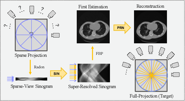 Figure 1 for 2-Step Sparse-View CT Reconstruction with a Domain-Specific Perceptual Network