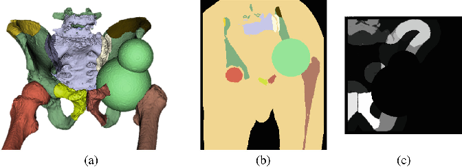 Figure 3 for Patch-Based Image Similarity for Intraoperative 2D/3D Pelvis Registration During Periacetabular Osteotomy