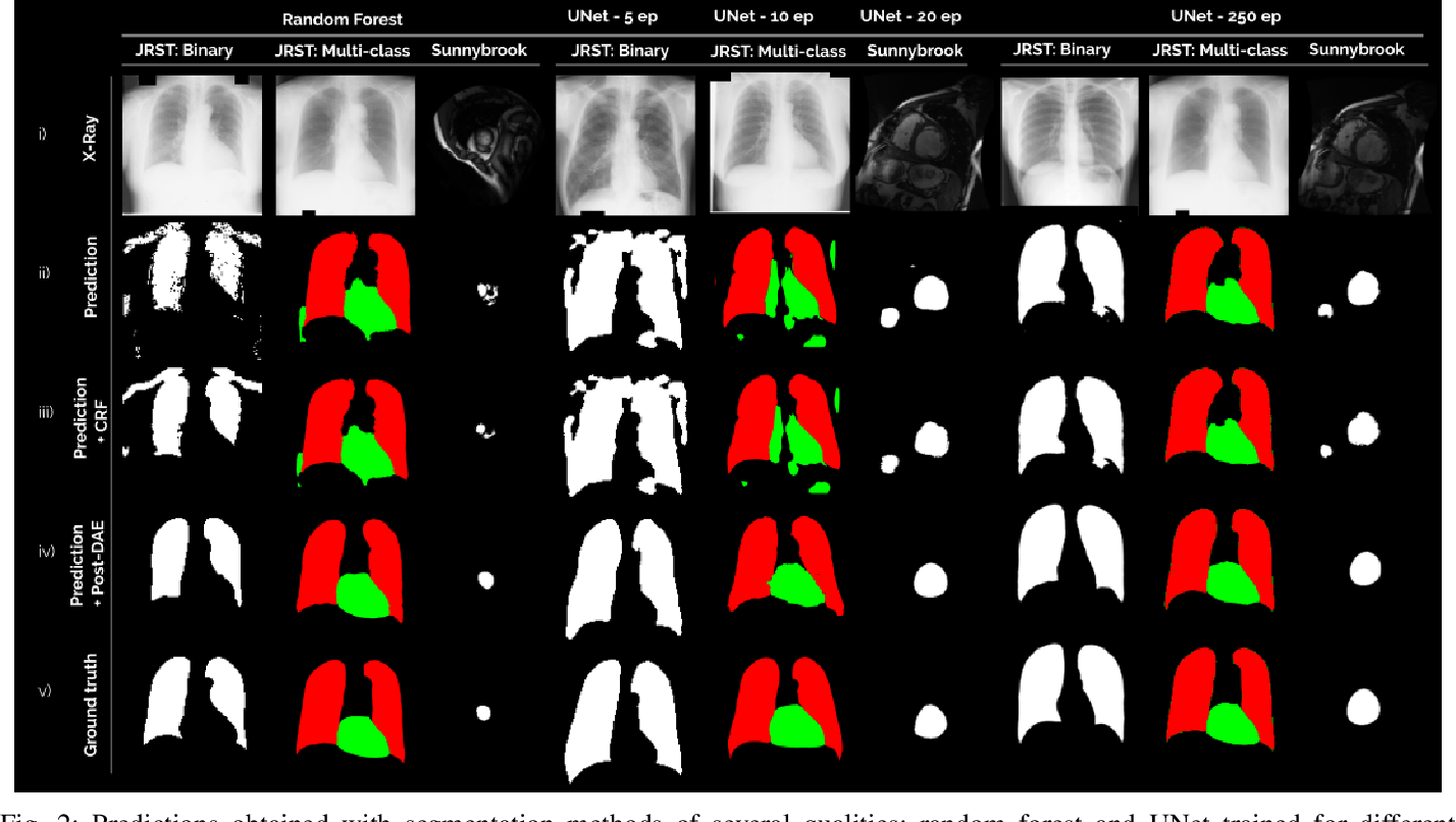 Figure 2 for Post-DAE: Anatomically Plausible Segmentation via Post-Processing with Denoising Autoencoders