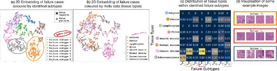 Figure 4 for A Principled Approach to Failure Analysis and Model Repairment: Demonstration in Medical Imaging
