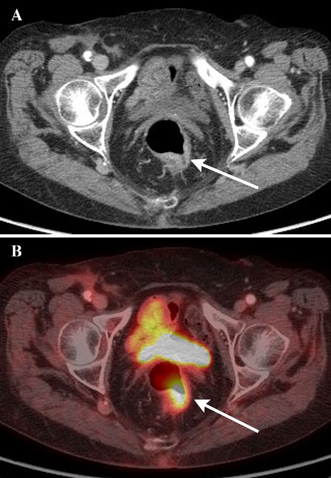 Fig. 3. Transverse CT (A) and PET (B) images in a 60-yearold male with isolated recto-sigmoid colitis without associated diverticulosis. There is colonic wall thickening, mucosal hyperenhancement, and pericolonic inflammatory change isolated to the recto-sigmoid colon (white arrow). There is no associated colonic diverticulosis.
