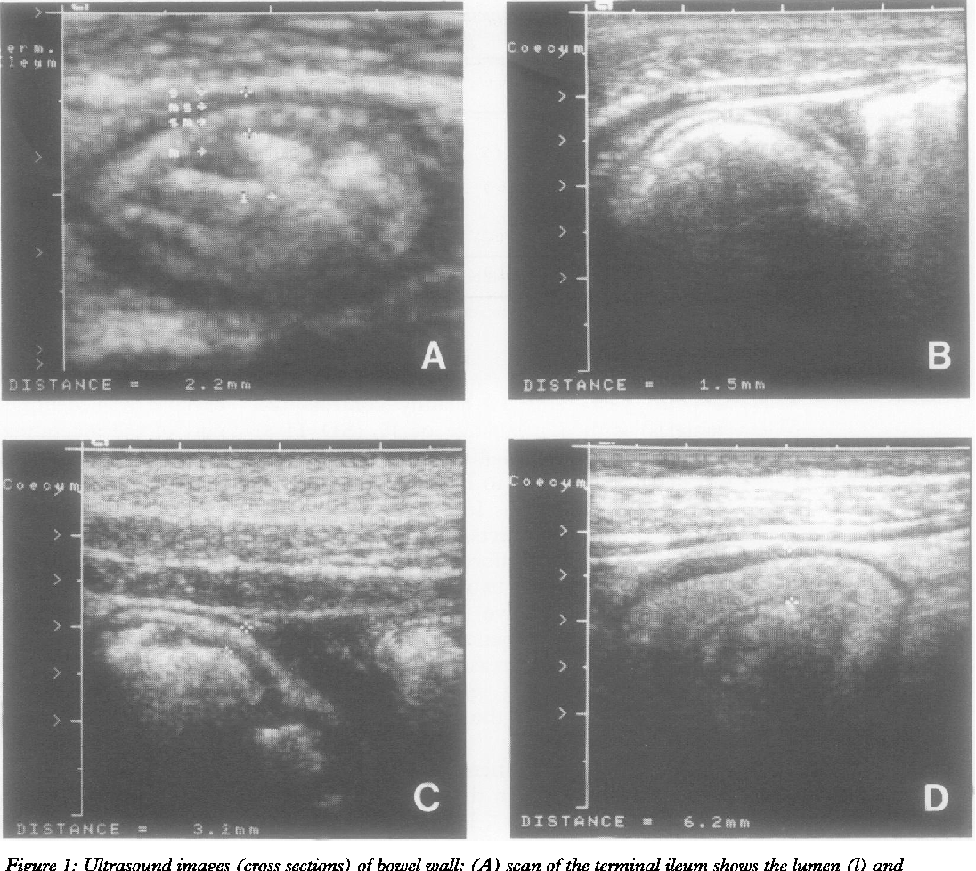 Figure 1: Ultrasound images (cross sections) of bowel wall; (A) scan of the terminal ileum shows the lumen (I) and thickened bowel wall (distance between the two marks, 2 2 mm). The different layers of the wall correspond to mucosa (m), submucosa (sm), muscularis propnia (ms), and serosa (s); (B) normal colon (wall thickness 1-5 mm); (C) mild thickening ofcaecum wall (3-1 mm); (D) pronounced bowel wall thickening ofcaecum (6 2 mm) with increased thickness of submucosa (echogenic layer).