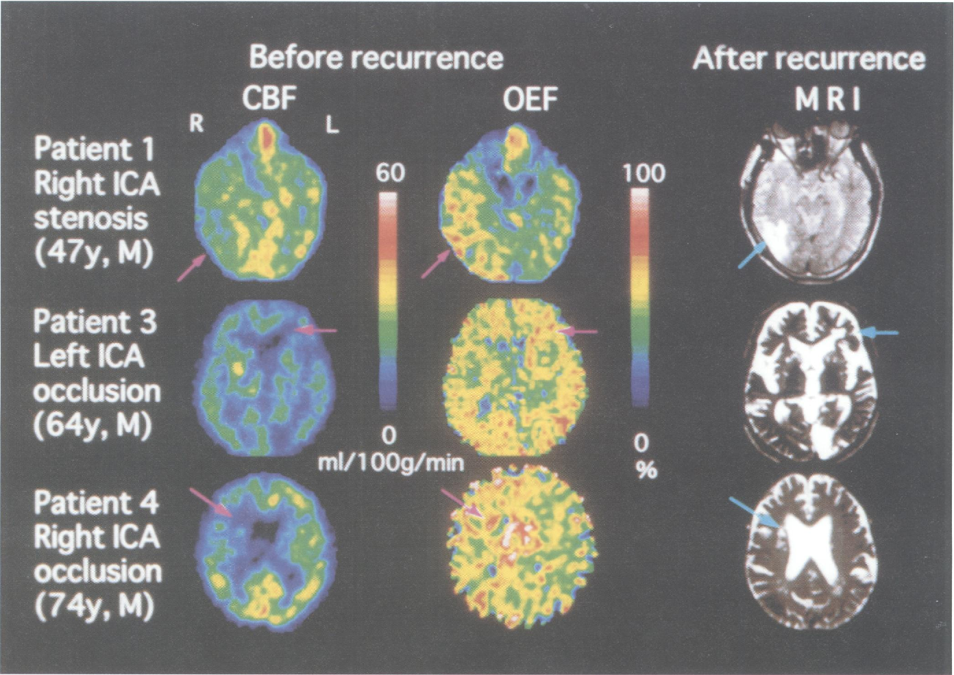 Figure 2 from occlusive diseases from PET   recurrent stroke in