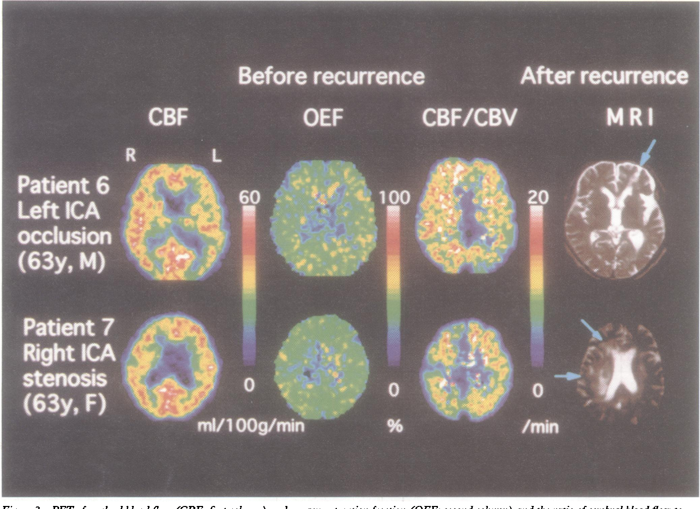 Figure 3 from occlusive diseases from PET   recurrent stroke in