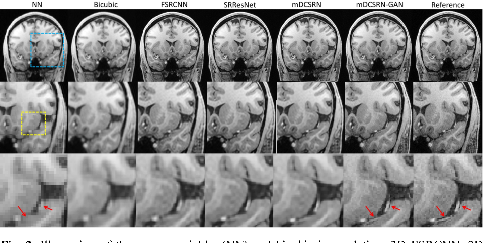 Figure 3 for Efficient and Accurate MRI Super-Resolution using a Generative Adversarial Network and 3D Multi-Level Densely Connected Network