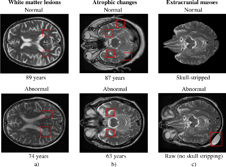 Figure 1 for Automated triaging of head MRI examinations using convolutional neural networks