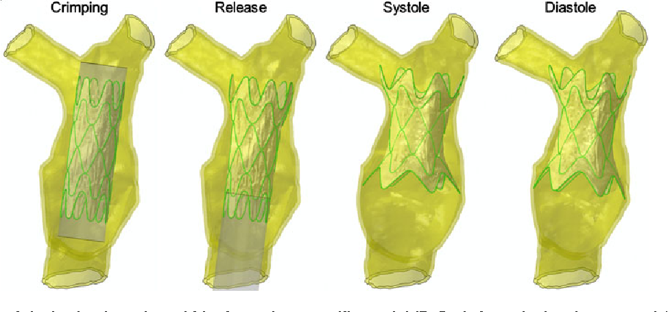 FIGURE 3. Phases of device implantation within the patient-specific model (BeSo is here depicted as example): device crimped within the RVOT anatomy; release from the catheter membrane sheath; and deformations during systole and diastole.