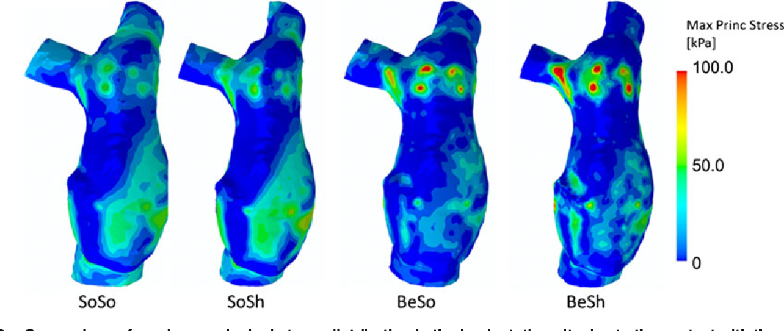 FIGURE 6. Comparison of maximum principal stress distribution in the implantation site due to the contact with the stent-graft in the four patient-specific models.