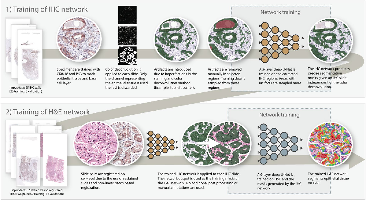 Figure 1 for Epithelium segmentation using deep learning in H&E-stained prostate specimens with immunohistochemistry as reference standard