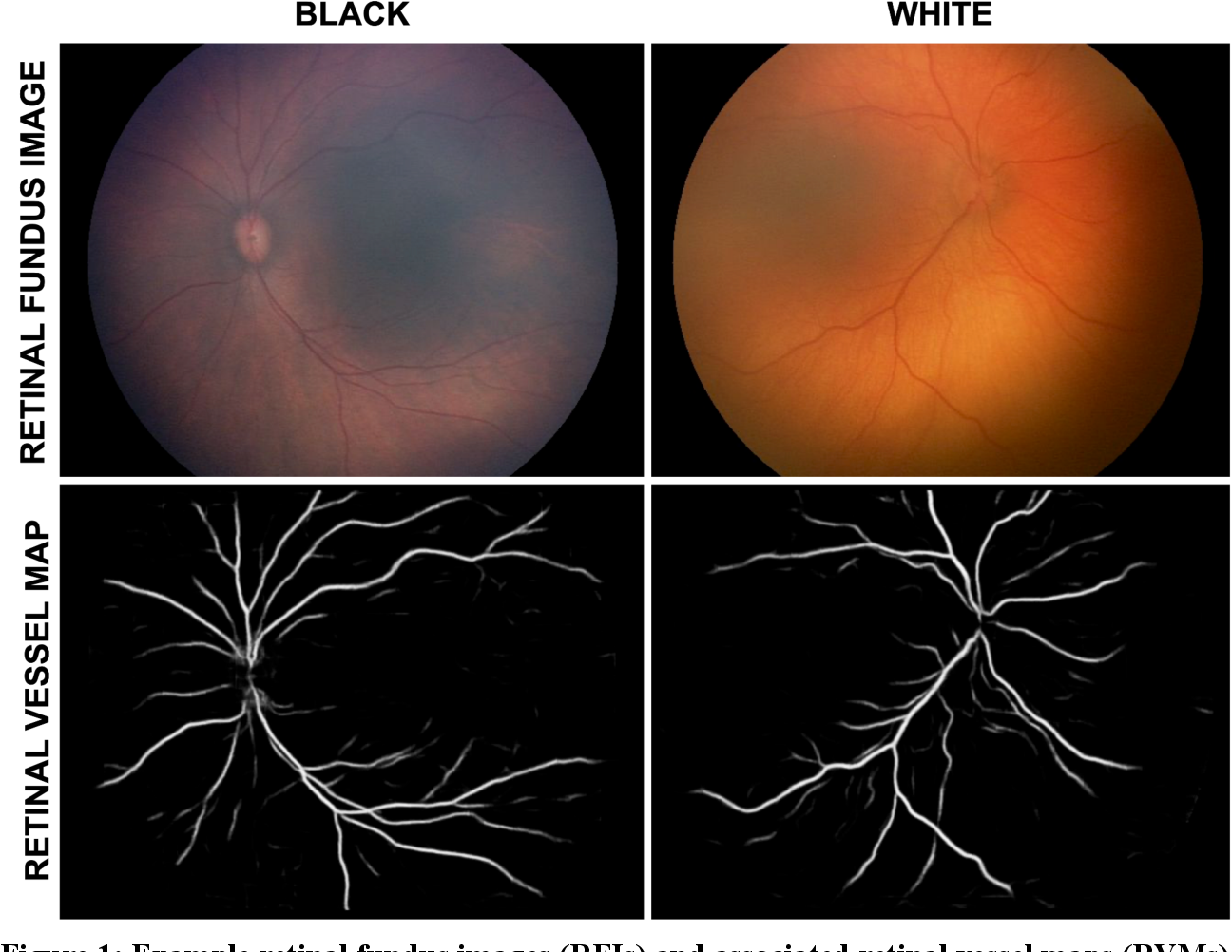 Figure 1 for Not Color Blind: AI Predicts Racial Identity from Black and White Retinal Vessel Segmentations