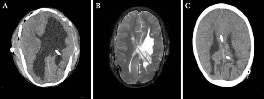 Fig. 5 AVC located in the contralateral ventricle (a preoperative CT, b postoperative MRI). AVC located intraparenchymally (c)