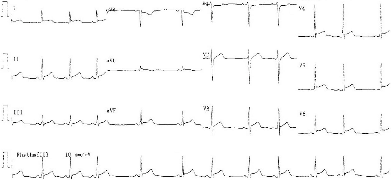 Figure 1. A 12-lead electrocardiogram obtained at presentation to emergency department showing ST segment elevation in leads II, III, aVF, and V3 through V6.