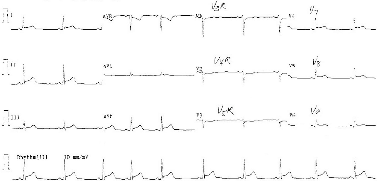 Figure 2. The electrocardiogram with ancillary leads obtained 10 hours after presentation to emergency department showing ST segment elevation in leads II, III, aVF, and V7 through V9.