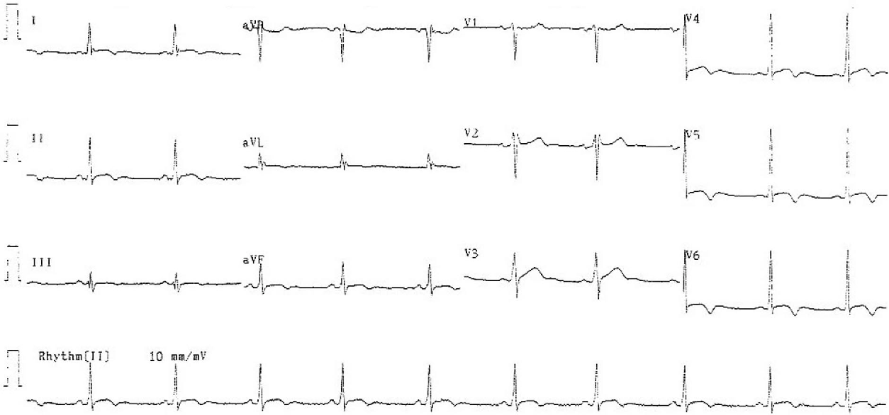 Figure 3. A 12-lead electrocardiogram on the third day after admission showing evolution of ST segments with inverted T waves in leads II, III, aVF, and V4 through V6.
