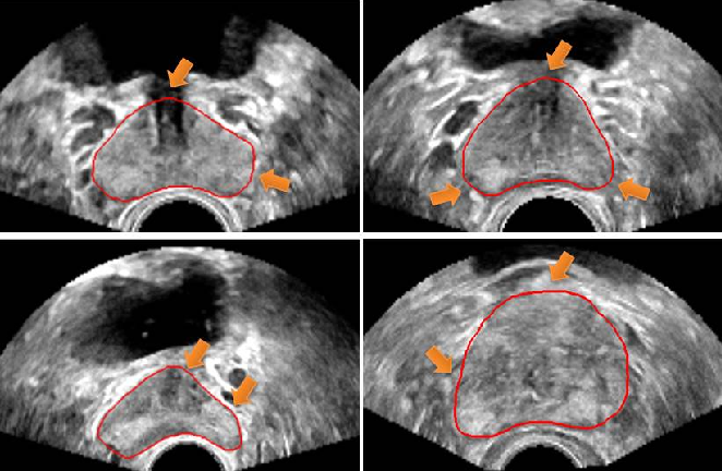 Figure 1 for Deep Attentive Features for Prostate Segmentation in 3D Transrectal Ultrasound