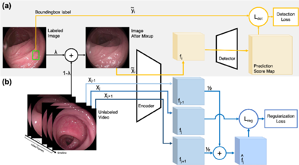 Figure 3 for Colonoscopy Polyp Detection: Domain Adaptation From Medical Report Images to Real-time Videos