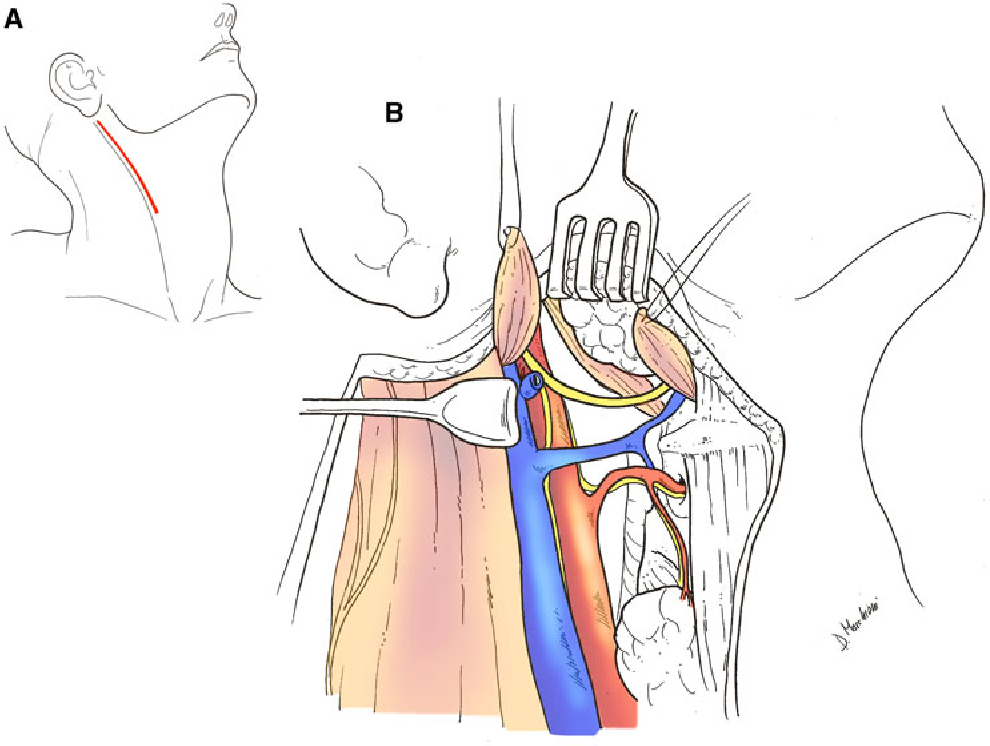 Parapharyngeal space tumors without mandibulotomy: our experience ...