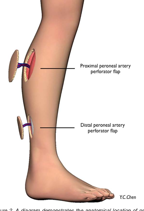 Reconstruction of distal hand and foot defects with the free ...