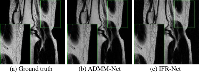 Figure 3 for IFR-Net: Iterative Feature Refinement Network for Compressed Sensing MRI