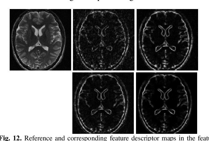 Figure 4 for IFR-Net: Iterative Feature Refinement Network for Compressed Sensing MRI