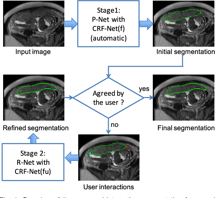 Figure 1 for DeepIGeoS: A Deep Interactive Geodesic Framework for Medical Image Segmentation