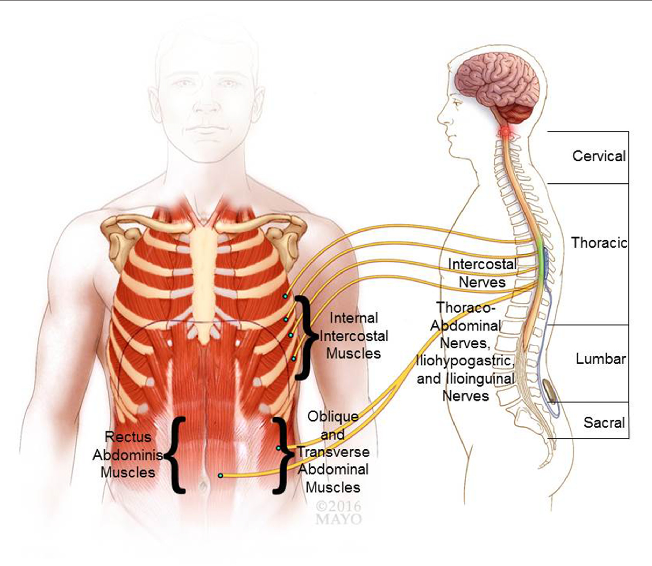 Review Of Epidural Spinal Cord Stimulation For Augmenting Cough