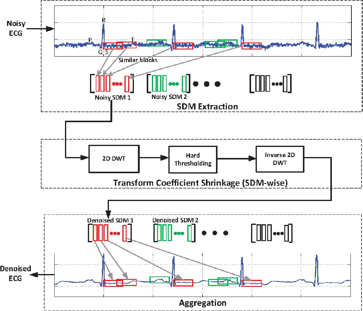 Electrocardiogram Signal Denoising Using Non Local Wavelet Transform Diagram Of Paper Public Domain Image Filtering Semantic Scholar
