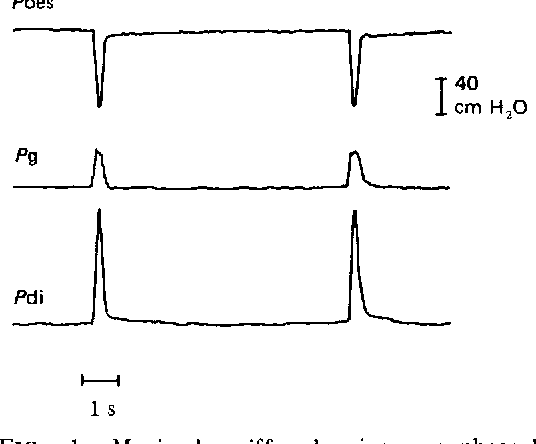 The maximal sniff in the assessment of diaphragm function in man ...