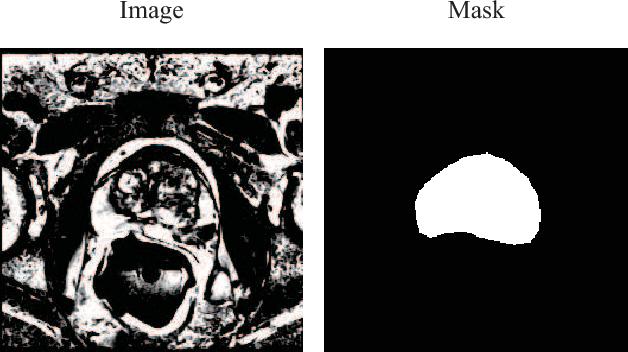 Figure 1 for Prostate Segmentation using 2D Bridged U-net
