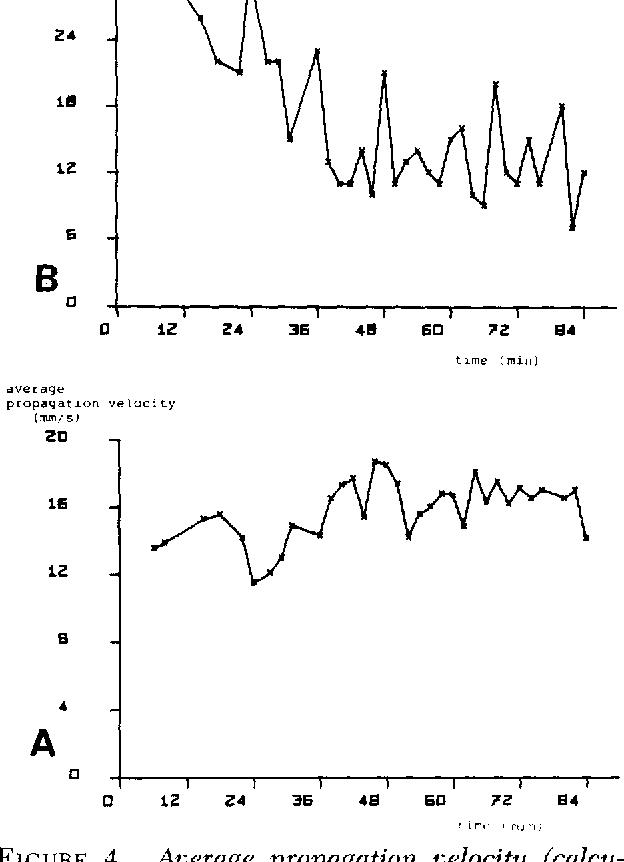 Figure 4 From Bolus Propagation In Pig Ureter In Vitro Semantic