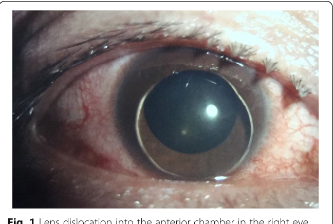 fc74ed82607d Monocular lens dislocation due to vomiting-a case report - Semantic ...