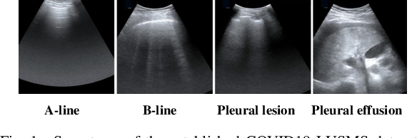 Figure 1 for Semi-Supervised Active Learning for COVID-19 Lung Ultrasound Multi-symptom Classification