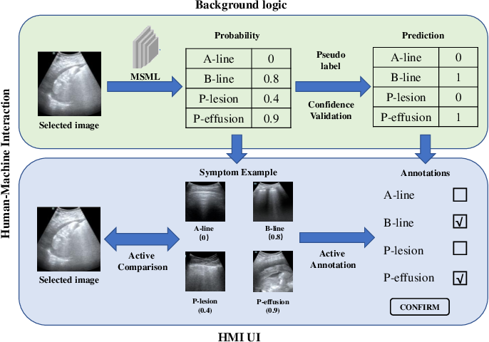 Figure 4 for Semi-Supervised Active Learning for COVID-19 Lung Ultrasound Multi-symptom Classification