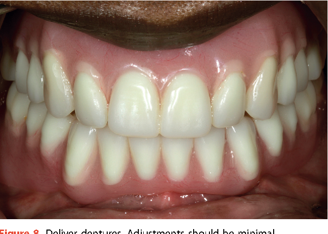 Figure 8 from Complete denture fabrication with CAD/CAM